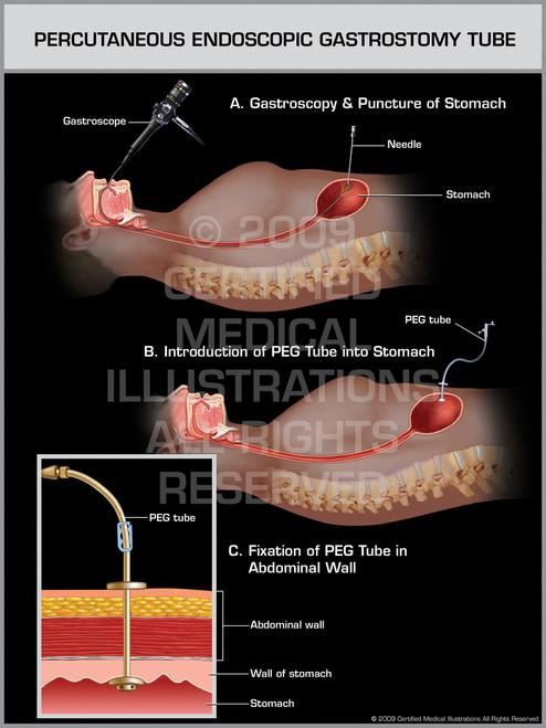 Printable Endoscopy: Percutaneous Endoscopic Gastrostomy Tube