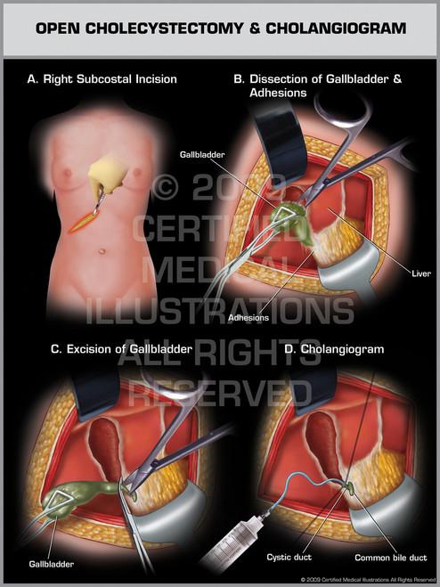 Open Cholecystectomy & Cholangiogram