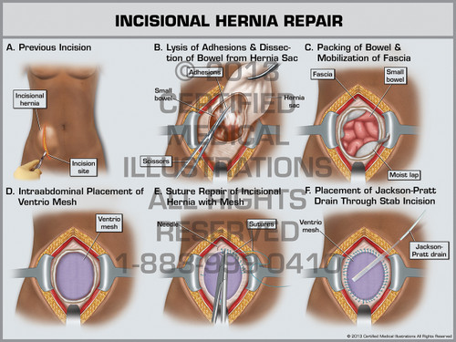 Incisional Hernia Repair