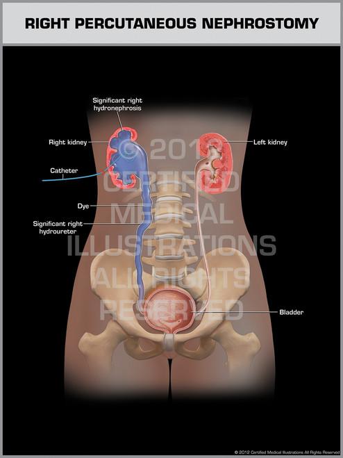 Right Percutaneous Nephrostomy