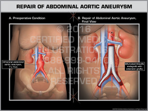 Exhibit of Repair of Abdominal Aortic Aneurysm
