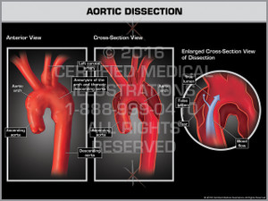 Aortic Dissection - Print Quality Instant Download