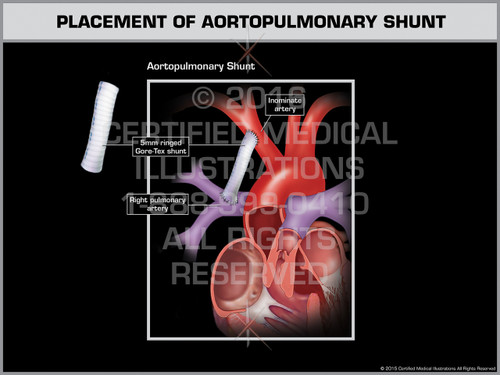 Exhibit of Placement of Aortopulmonary Shunt