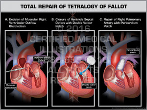 Exhibit of Total Repair of Tetralogy of Fallot- Print Quality Instant Download
