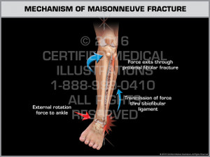 Exhibit of Mechanism of Maisonneuve Fracture