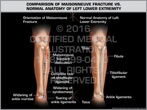 Exhibit of Comparison of Maisonneuve Fracture vs. Normal Anatomy of Left Lower Extremity