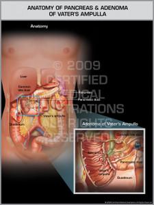 Anatomy of Pancreas and Adenoma of Vater's Ampulla