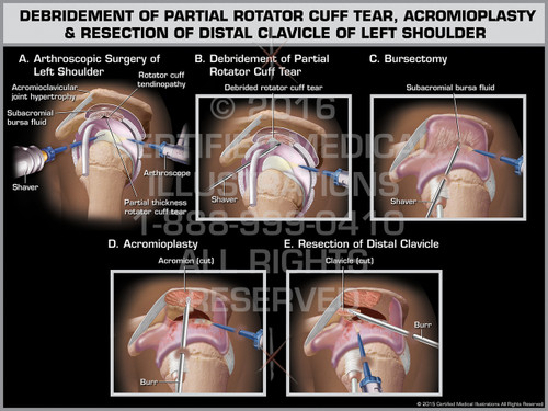Exhibit of Debridement of Partial Rotator Cuff Tear, Acromioplasty & Resection of Distal Clavicle of Left Shoulder