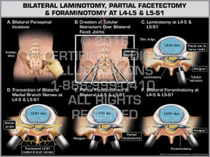 Exhibit of Bilateral Laminotomy, Partial Facetectomy & Foraminotomy at L4-5 & L5-S1 - Print Quality Instant Download