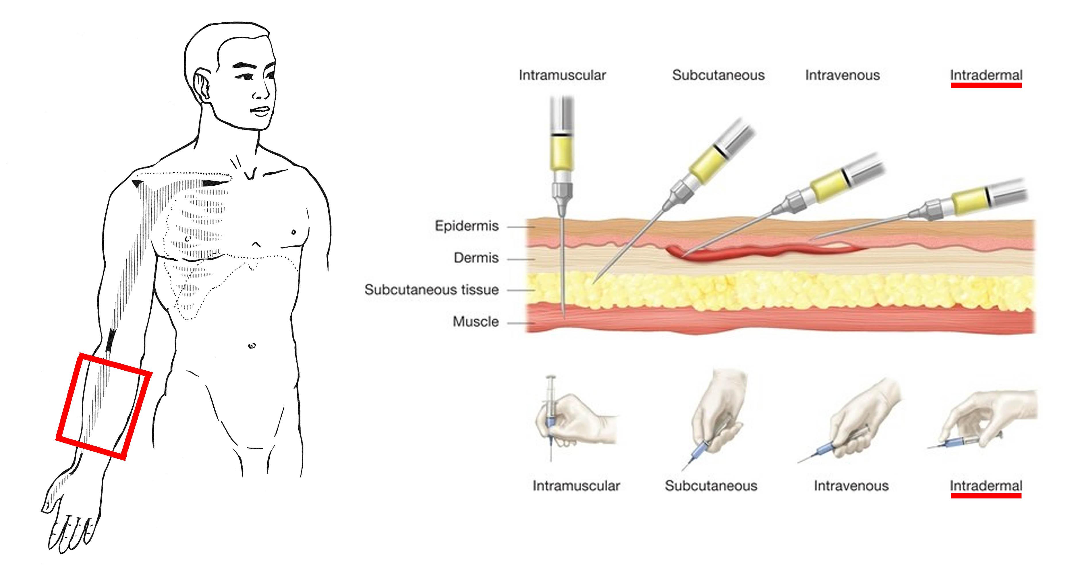 interdermal-injection.jpg