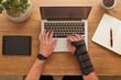 Wrist support splint for work use