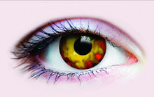Contact Lenses - Epidemia
