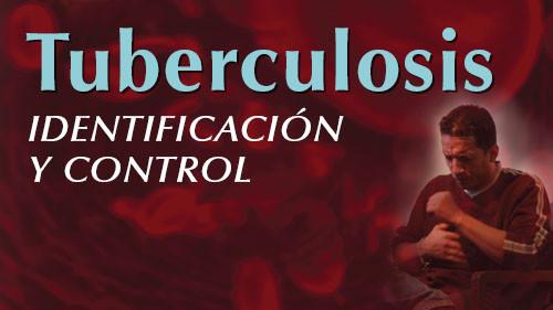 TUBERCULOSIS: IDENTIFICACIÓN Y CONTROL