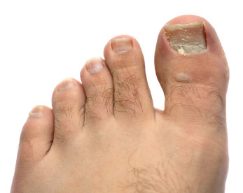 nail-fungus-1-.jpg