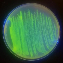 Genetic Design Starter Kit - Glowing Jellyfish Bacteria