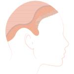 5-full-head-mini.jpg