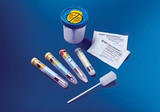 BD Vacutainer® Urine Collection System