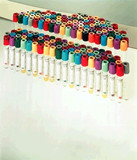 BD Vacutainer® Glass Blood Collection Tubes (Citrate)