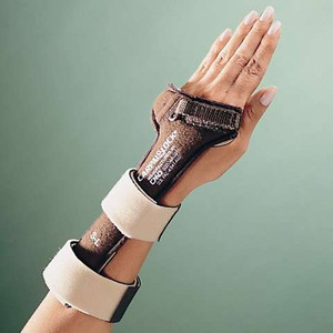 CarpalLock™ Dorsal Carpal Tunnel Splint