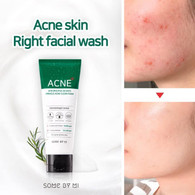 some by mi miracle acne clear foam