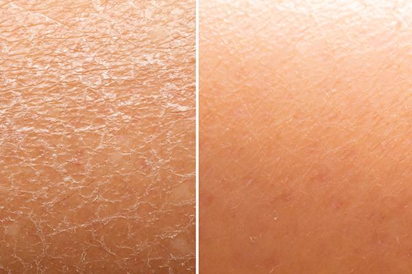 dry-skin.jpg