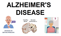 alzheimers2.png