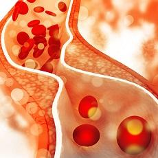 cholesterol-lg.jpg