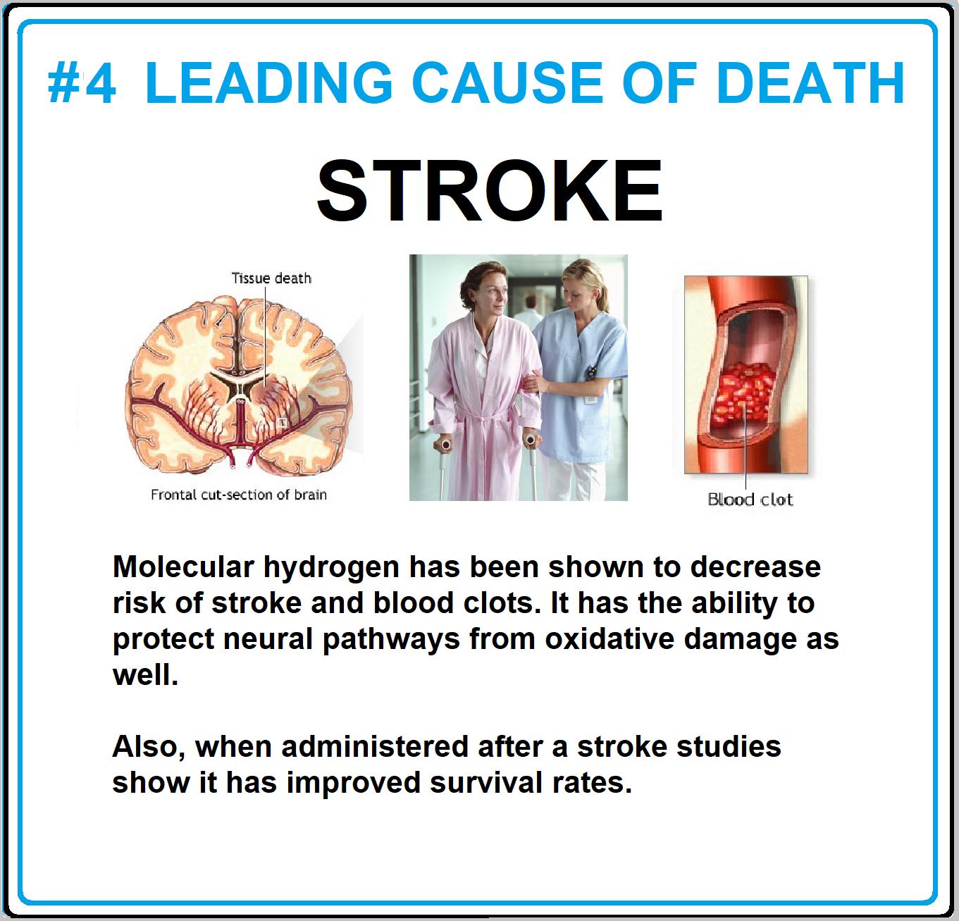 stroke.png