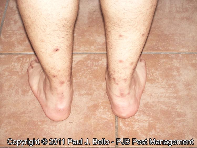 Bed Bug Bites on Legs