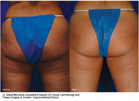 accent-xl-before-and-after-esults-2.jpg