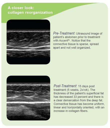 accent-xl-collagen-re-organization.jpg