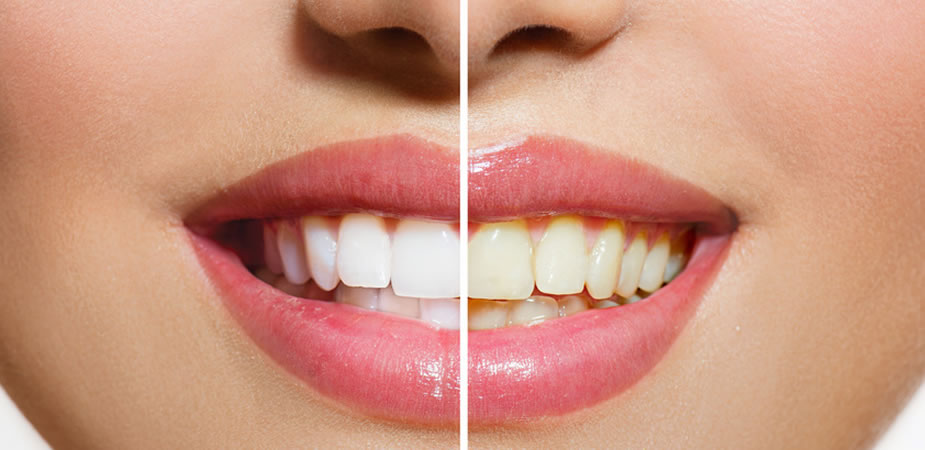 Teeth Whitening Perth