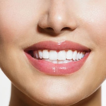 Teeth Whitening - Bleach Bright 18% whiter -  30 mins