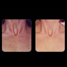IPL Skin Rejuvenation - Chest