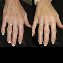 IPL Skin Pigmentation - Hands
