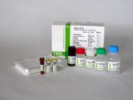 Amyloid Beta ( 1-40 ) ( FL ) Aβ