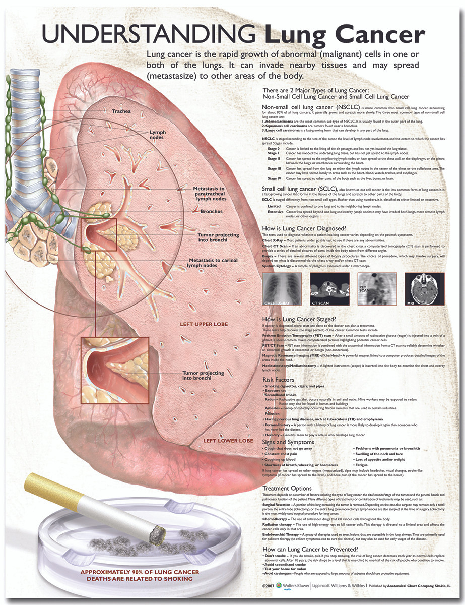 reference chart - understanding lung cancer  image 1  loading zoom