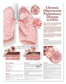 Reference Chart - Chronic Obstructive Pulmonary Disease