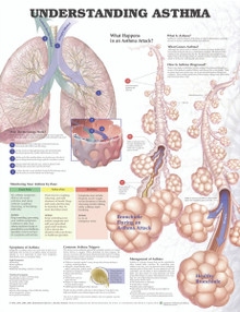 Reference Chart - Understanding Asthma
