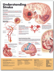 Reference Chart - Understanding Stroke
