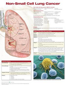 Reference Chart -  Non-Small Cell Lung Cancer