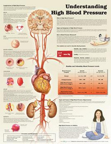 Reference Chart - Understanding High Blood Pressure