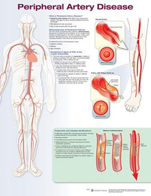 Reference Chart -  Peripheral Artery Disease