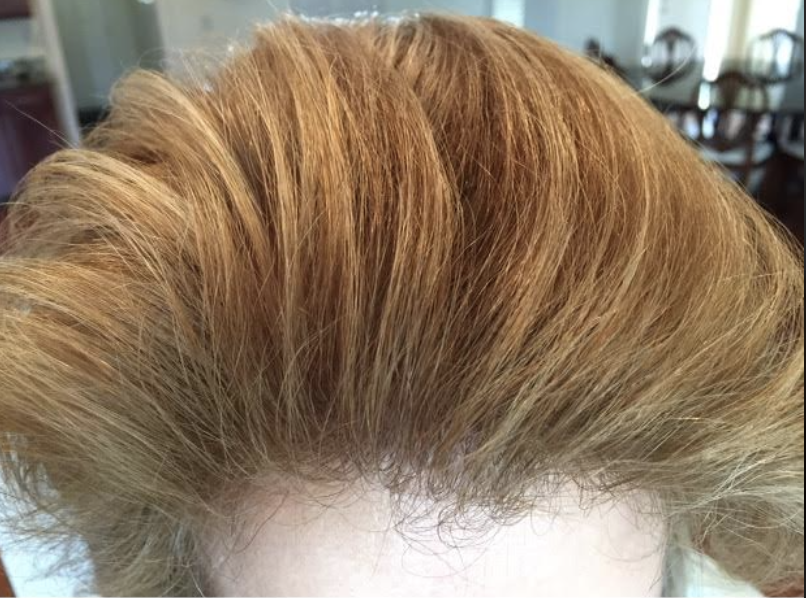 after-picture-using-help-hair-shake-and-help-hair-vitamins.png