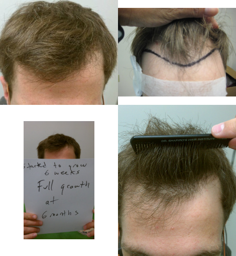 Faster regrowth after a hair transplant. Hair vitamins for fast hair growth. Accelerated Follicular Restoration