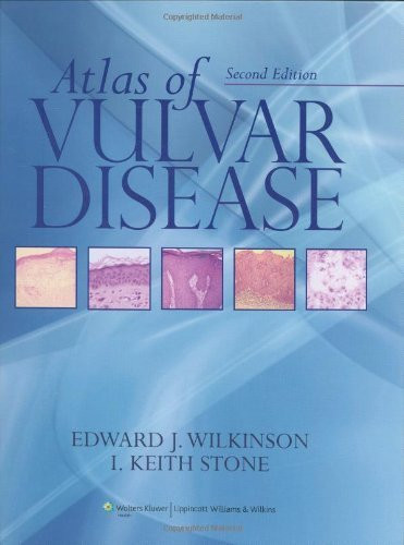 Atlas Of Vulvar Disease