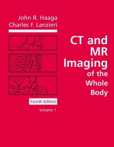 Ct And Mri Of The Whole Body 2 Volume set