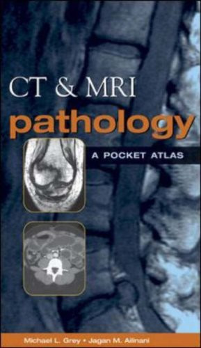 Ct And Mri Pathology