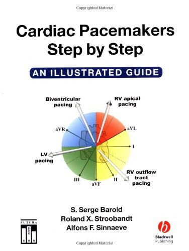 Cardiac Pacemakers Step-By-Step