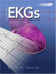 Understanding Ekgs